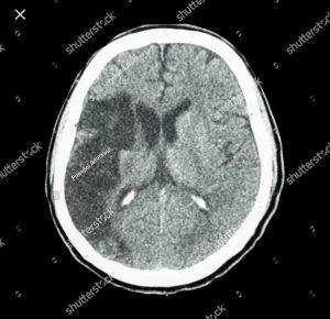 otak kiri