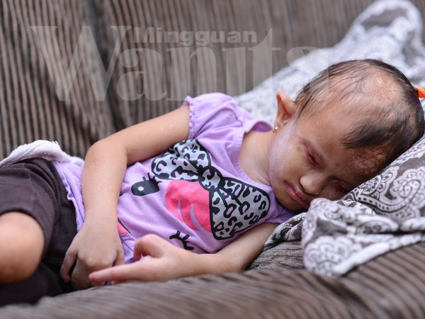 Anak Ini Lahir Tanpa Bebola Mata, 3 Lubang Di Jantung Dan Kesan Terbakar Pada Tubuh
