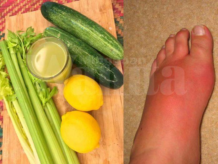 sakit gout