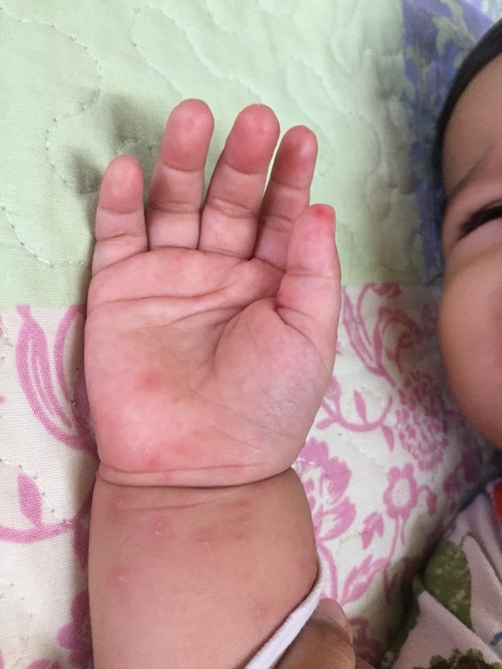 syak baby chair punca anak dijangkiti virus HFMD
