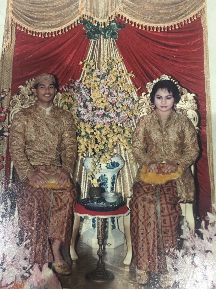 Kornea Mata Suami Rosak, Dah Setahun Hilang Sebelah Penglihatan Gara-gara Pakai Contact Lens