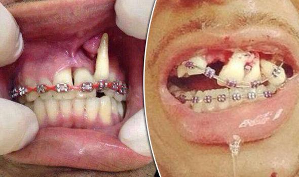 fake braces