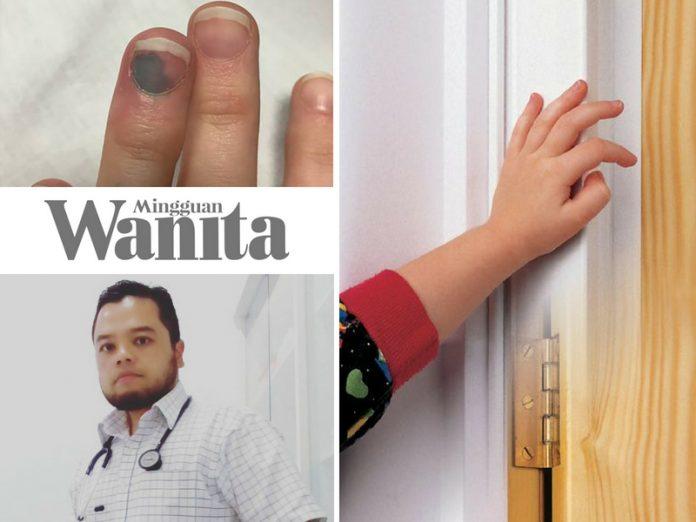 Doktor Terang Cara Kurangkan Sakit Akibat Jari Terkepit Pintu, Orang Tak Belajar Medik Pun Boleh Buat