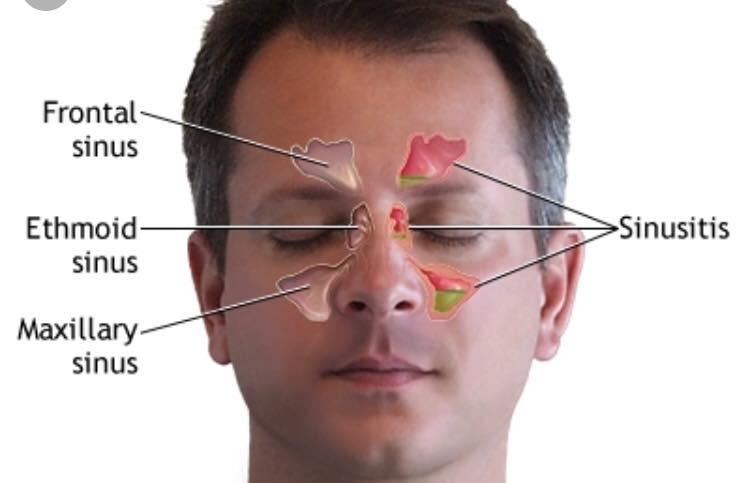 Penderita Resdung, Ini 7 Tip Redakan Sakit Ikut Saranan Doktor ENT