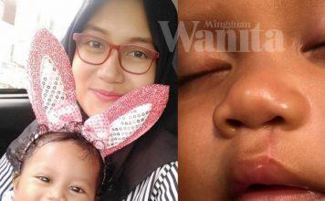 Isteri Lan Solo Beri Petua Cantikkan Kesan Parut Sumbing Baby Xandra